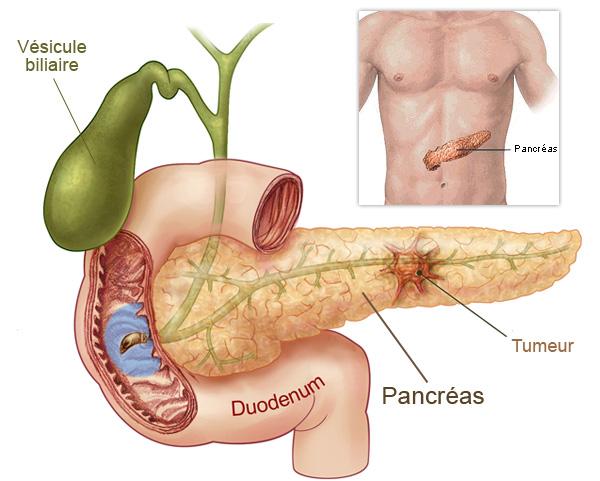 Glandula del Sistema Endocrino: Pancreas: Enfermedades derivadas del ...
